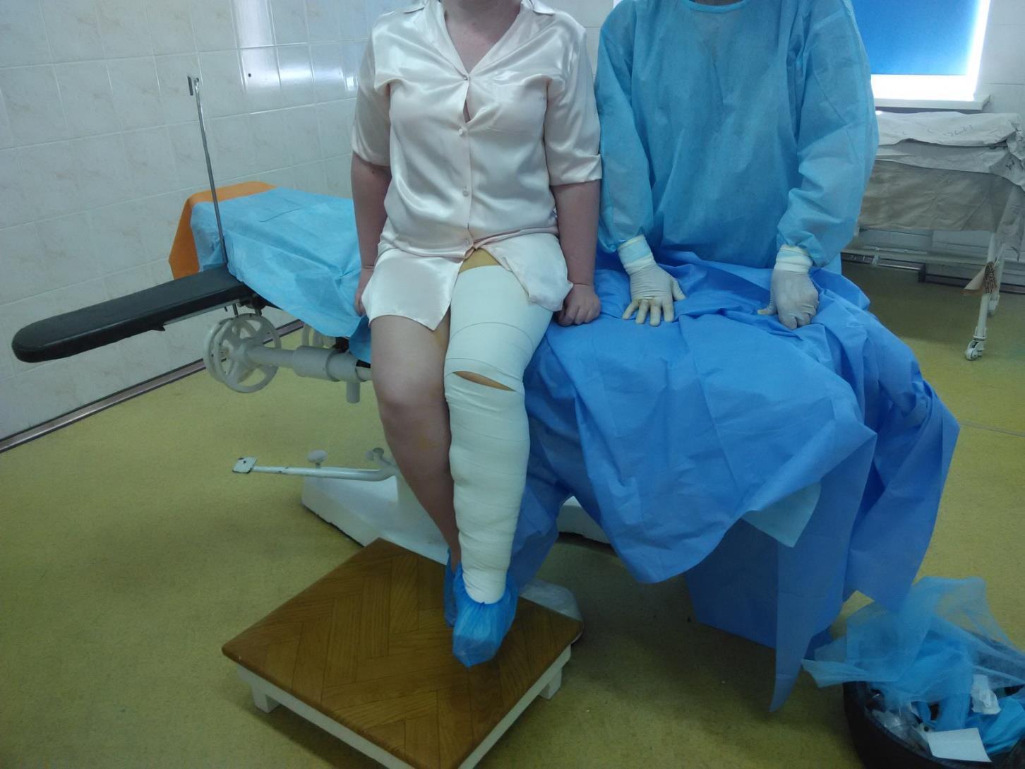 Эндовенозная лазерная абляция