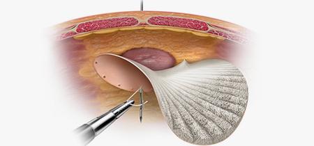 Имплантат для лечения рецидивных грыж